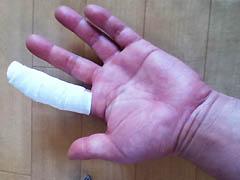 包帯巻いた指